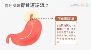 胃食道逆流原因、為什麼會胃食道逆流